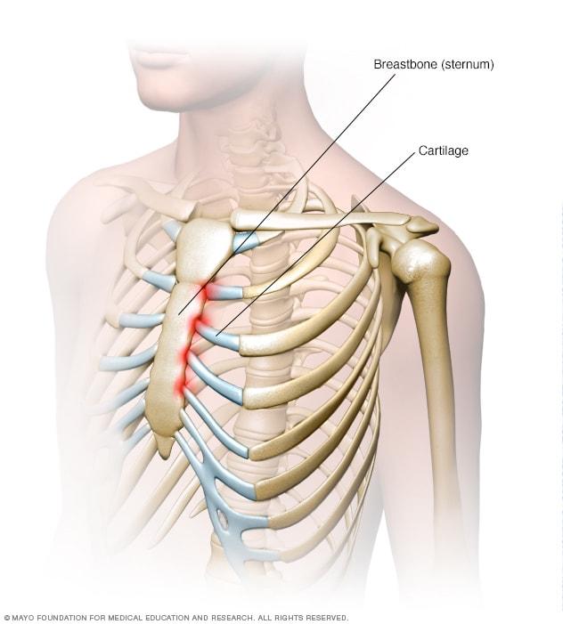 التهاب الغضروف الضلعي الأعراض والأسباب Mayo Clinic مايو كلينك
