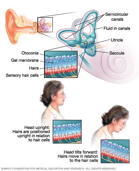 الدوخة الأعراض والأسباب Mayo Clinic مايو كلينك