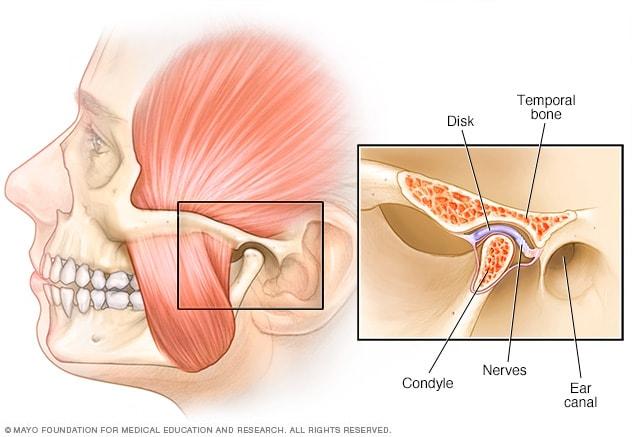 اضطرابات المفصل الفكي الصدغي الأعراض والأسباب Mayo Clinic مايو كلينك