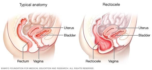 هبوط المهبل الخلفي الفتاق الأعراض والأسباب Mayo Clinic مايو كلينك