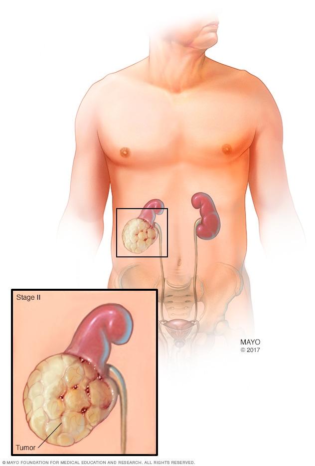 سرطان الكلى التشخيص والعلاج Mayo Clinic مايو كلينك