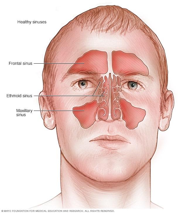 التهاب الأنف اللاأرجي الأعراض والأسباب Mayo Clinic مايو كلينك