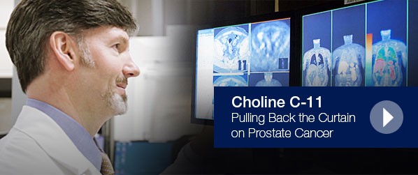 Choline C-11 - Pulling Back the Curtain on Prostate Cancer