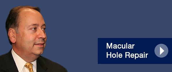 Macular Hole Repair