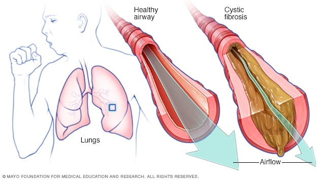 Illustration showing mucus in lung