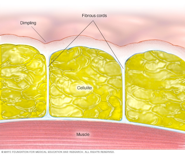 Illustration showing the anatomy of cellulite
