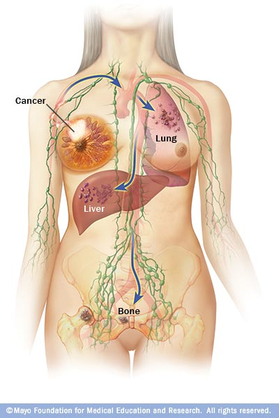 Illustration shows where breast cancer spreads