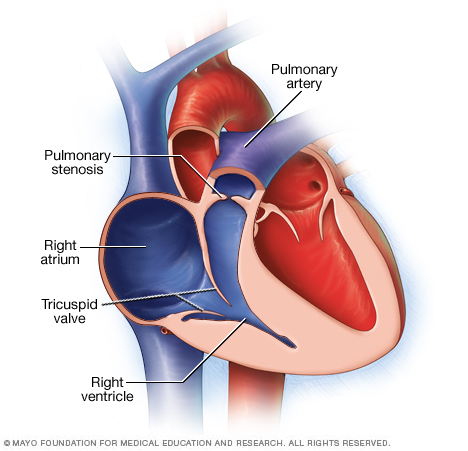 Illustration showing pulmonary stenosis
