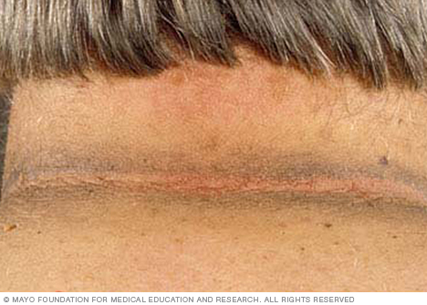 Photo of acanthosis nigricans