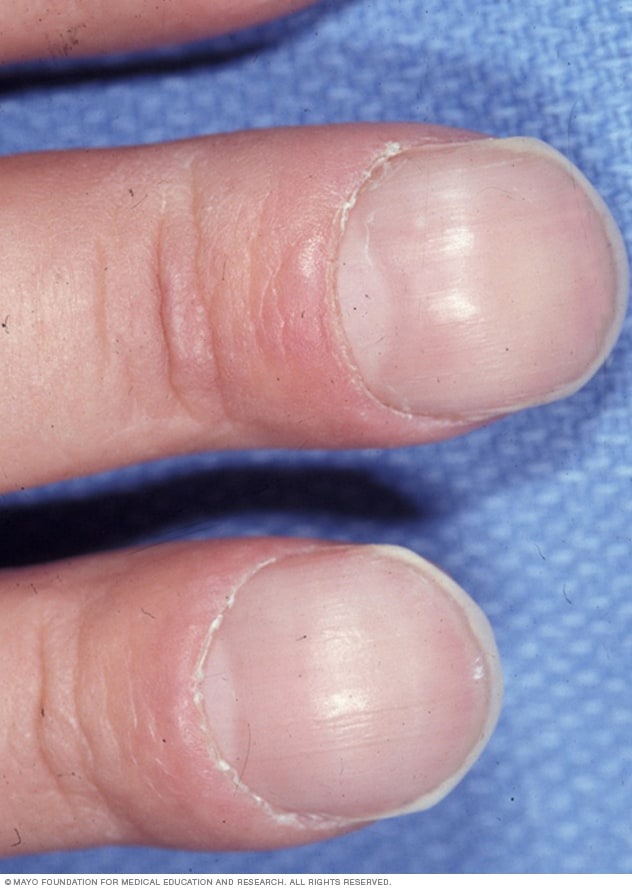 Photo showing clubbing of fingers