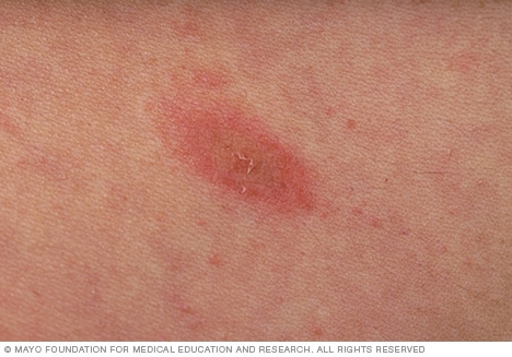 Photograph showing herald patch of pityriasis rosea