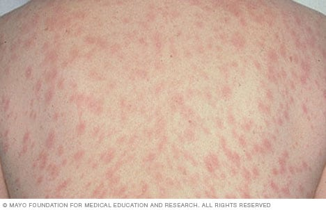 very itchy red blotchy rash on torso, legs arms, back, and ...