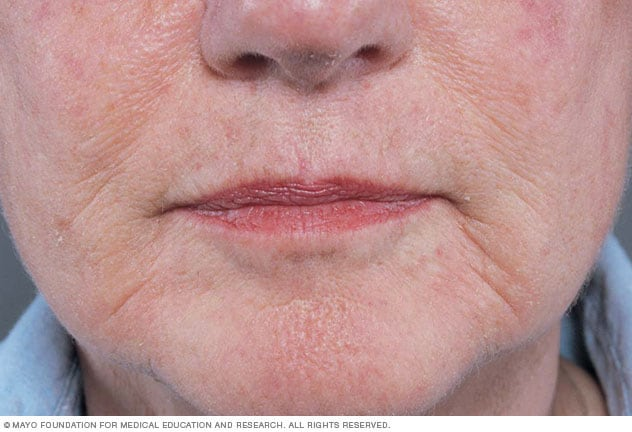 Image showing wrinkles on the face