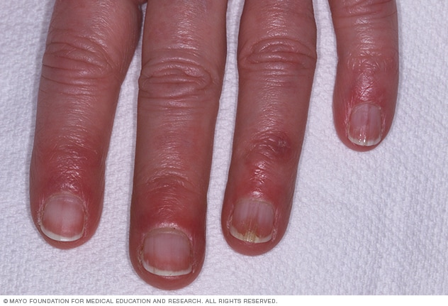 Photograph showing chilblains