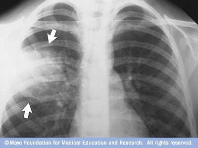 This chest X-ray shows an area of lung inflammation indicating the ...
