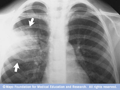 X-ray image of lungs with pneumonia