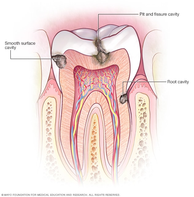 Image showing types of cavities