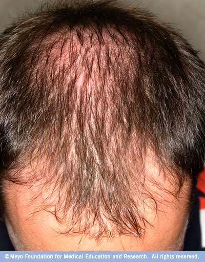 Photograph showing male-pattern baldness (androgenetic alopecia)