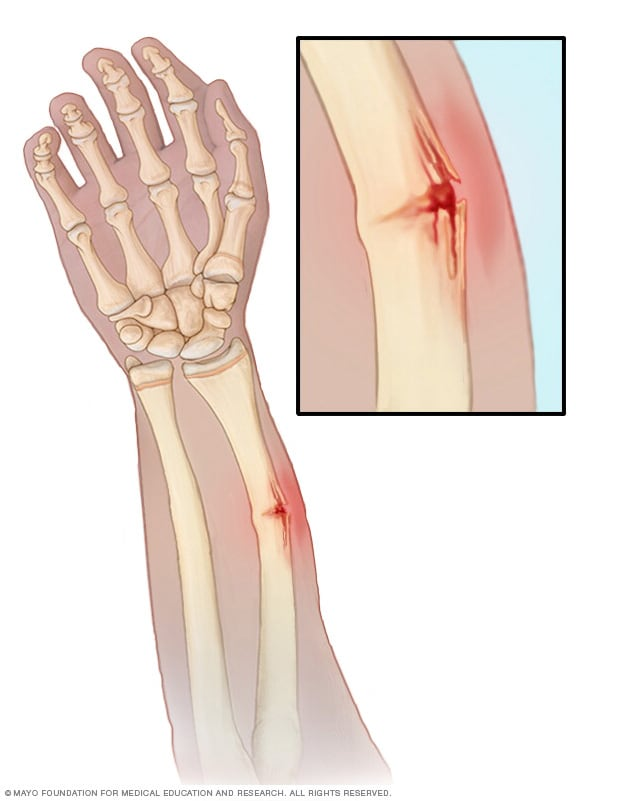 Illustration showing a greenstick fracture