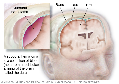 Illustration showing intracranial hematoma