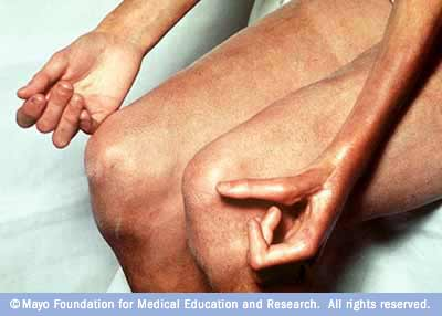 Photograph of the hands and legs of a person with scleroderma