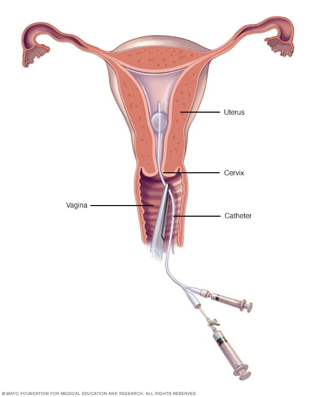 Illustration showing hysterosalpingography