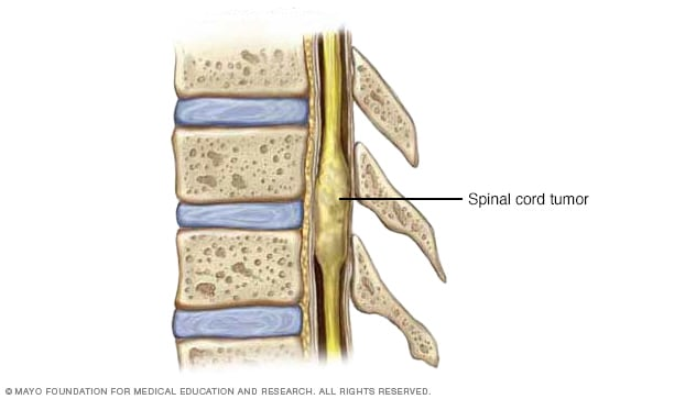 Illustration showing a tumor in the interior of the spinal cord