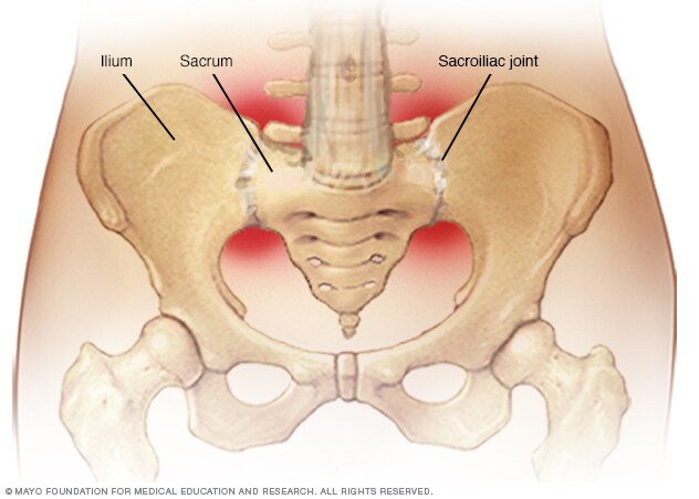 Sacroiliac joints
