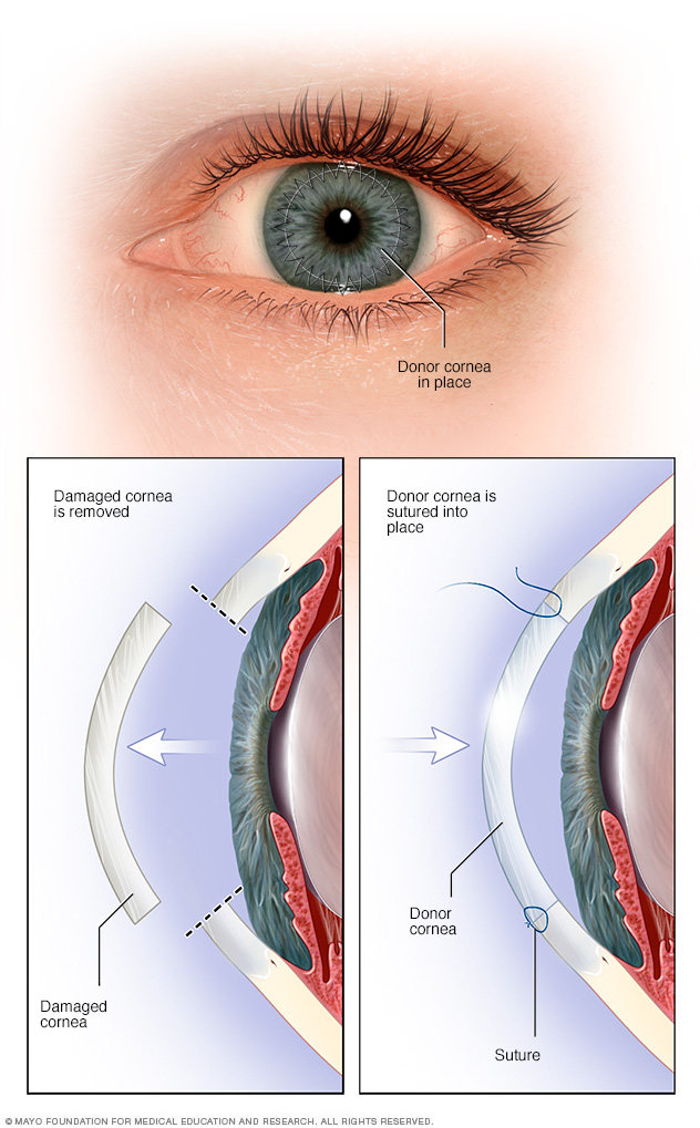 Illustration showing cornea transplant