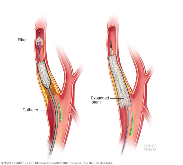 Image showing carotid stenting
