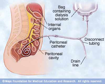 Peritoneal Cavity Definition Your Peritoneal Cavity is