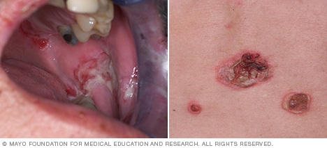 Pemphigus vulgaris of the mouth and skin