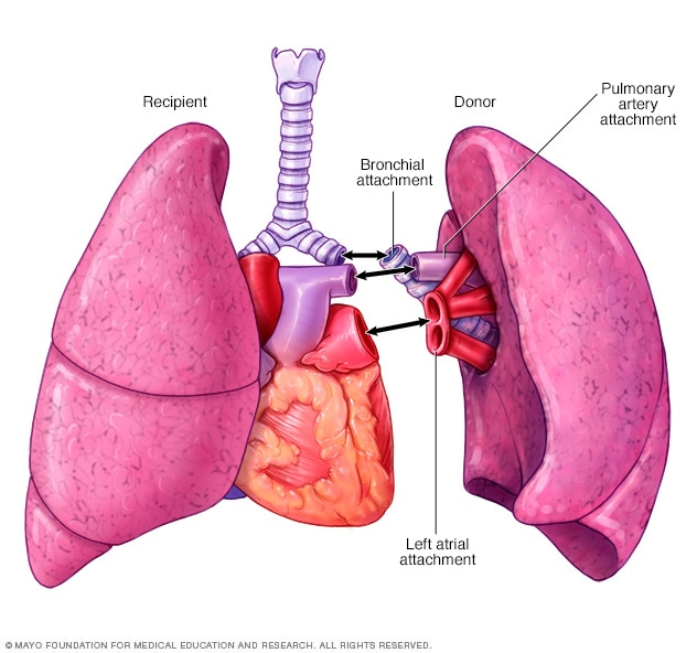 Illustration showing lung transplant