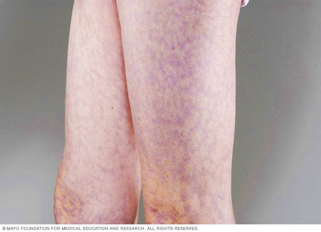 Image of livedo reticularis