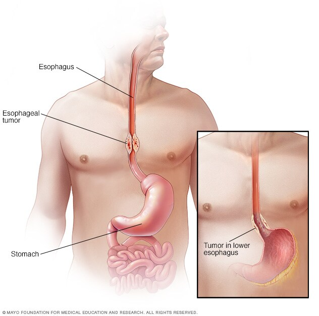 Illustration of esophageal cancer