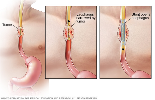 Illustration of esophageal stent