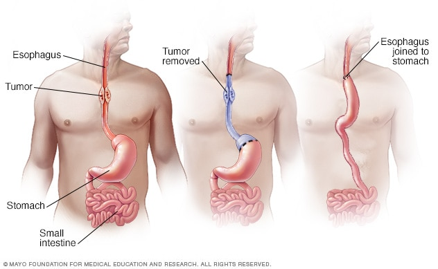 Illustration of esophageal cancer surgery
