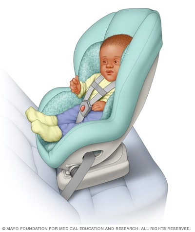 illustration of a convertible car seat mayo clinic. Black Bedroom Furniture Sets. Home Design Ideas