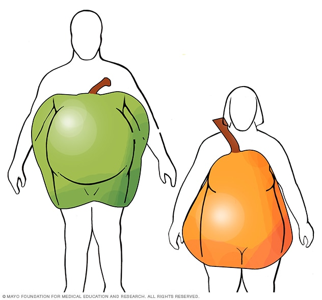 Illustration showing apple and pear body shapes