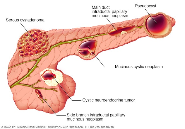 Illustration showing types of pancreatic cysts