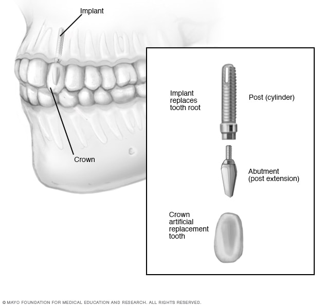 Illustration of dental implant surgery