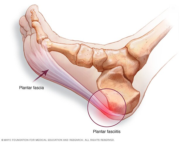 Illustration showing plantar fascia and location of heel pain