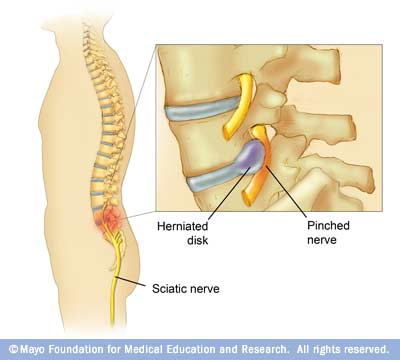 Image showing pinched nerve in spine