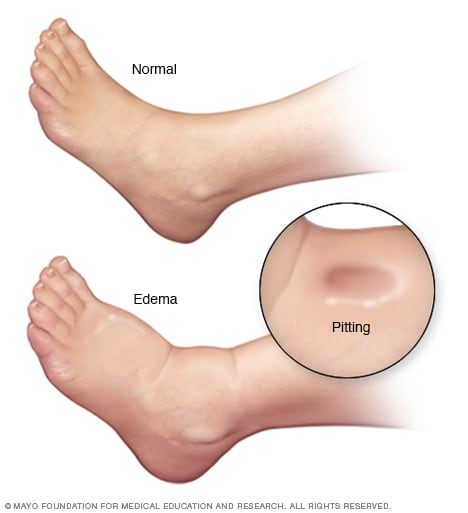 Illustration showing edema in foot and ankle