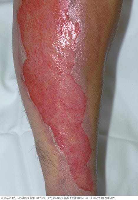 Image showing a second-degree burn