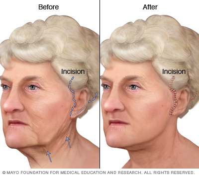 Illustration of a face-lift