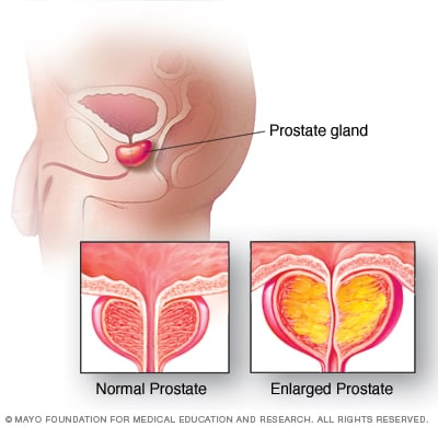 Illustration showing prostate gland