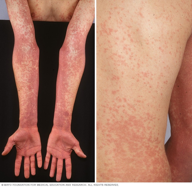 Photos showing scarlet fever