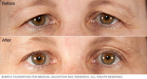 Photo showing before-and-after results of blepharoplasty