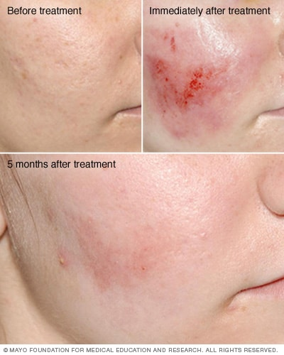 Before, immediately after and months after dermabrasion photos